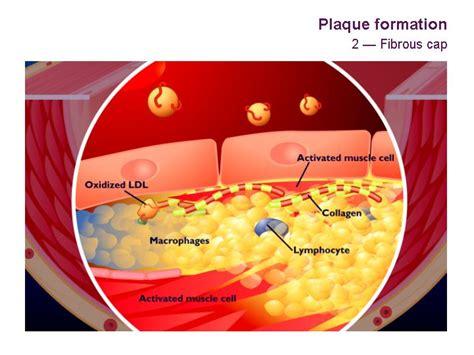 infiammazione vasi sanguigni colesterolo alto causato da infiammazione intestinale