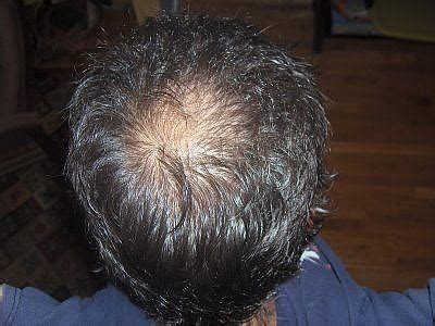 hair style temple bald spots will the hair regrow on bald spot with natural treatments