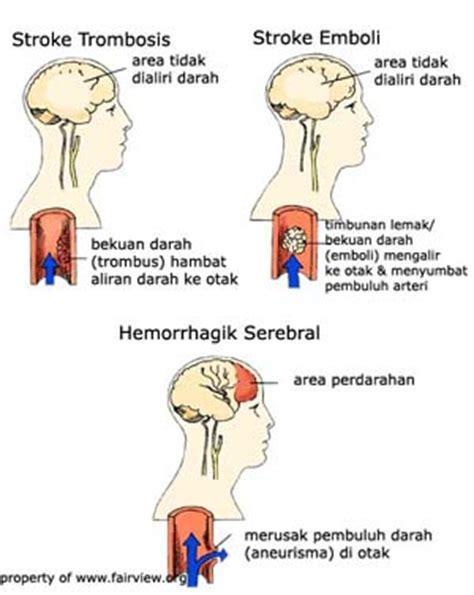 Herbal Carefor Stroke treatment for hemorrhagic stroke intracerebral hemorrhage prognosis