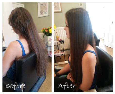 younger hair after brain surgery how to hide hair after brain surgery blog la hairvolution