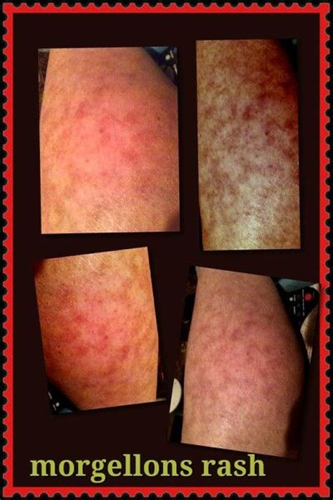 Detox Rash On Legs by 17 Best Images About Morgellons Information On