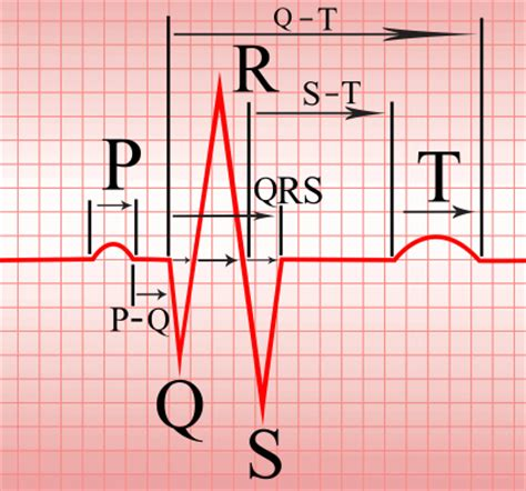 ecg tutorial online video cardiology and ecg blog learntheheart com