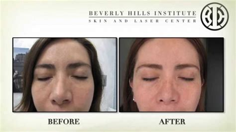 beverly hills md 1 customer reviews complaints list beverly hills md review effective anti aging skincare
