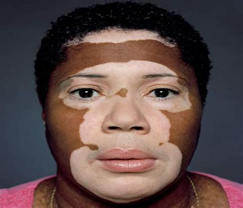 show pictures of pigment loss skin depigmentation causes symptoms treatment