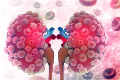 ferritina alta alimentazione quale relazione tra ferritina e malattie renali croniche