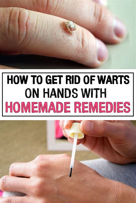 how to get rid of warts on with remedies