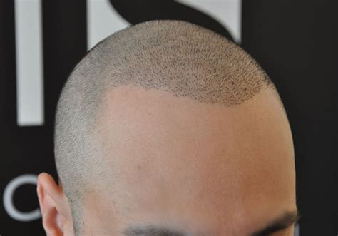 tattoo hairline cost his hair clinic smp cost wroc awski informator