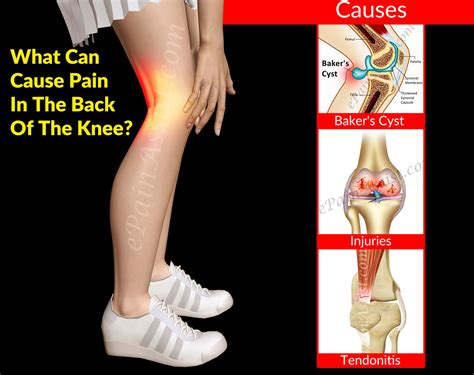 sore legs and after standing what can cause in the back of the knee