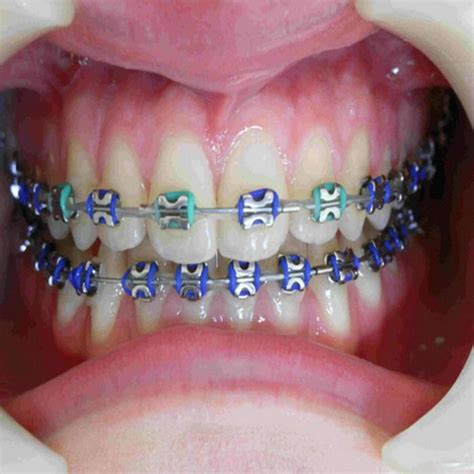 braces color ideas color orthodontic braces colors braces