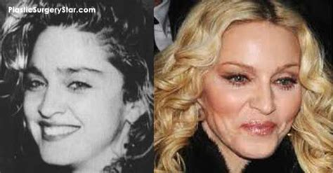 Designer Cosmetic Surgery Craze by 140 Best Images About Botox Before After On