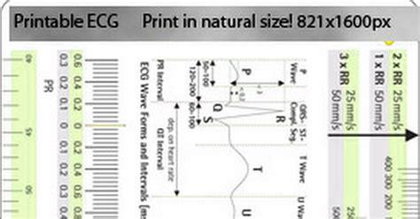 printable ekg ruler google dobs printable ecg ruler jpg google drive verena