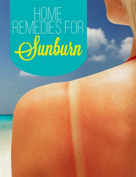 1000 ideas about home remedies for sunburn on