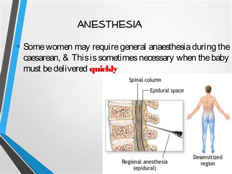 c section no anesthesia cesarean section cs