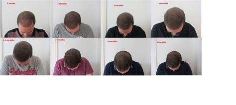 hair transplant timeline photos hair transplant photos month by month blackhairstylecuts com