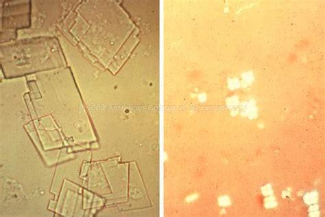 imágenes uñas rojas cells crystals etc studyblue