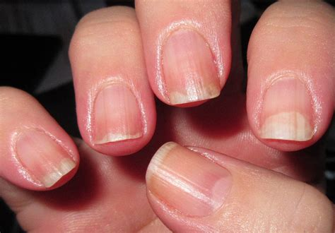red nail beds image gallery nail lifting