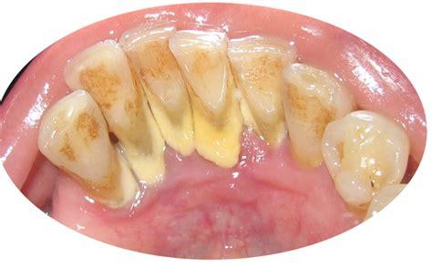 Bersihkan Karang Gigi Di Klinik Klinik Peri Gigi Jalan Magelang