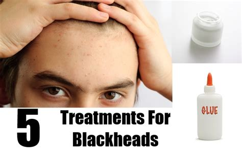 blackheads treatment how to get rid of blackheads