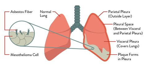 Pleural Mesothelioma Stages 5 by Pleural Mesothelioma Treatment Prognosis Diagnosis