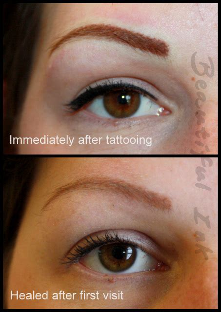 tattoo removal manchester tattooed eyebrows tattooing scar stretch