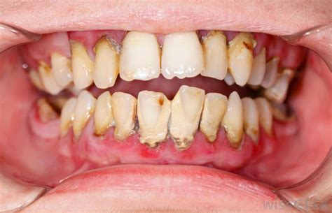 Teeth Stick Calcium Bone S what is resorption with pictures