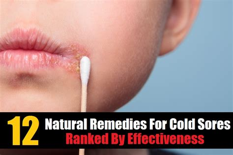 home remedy for cold sores best remedy for your cold