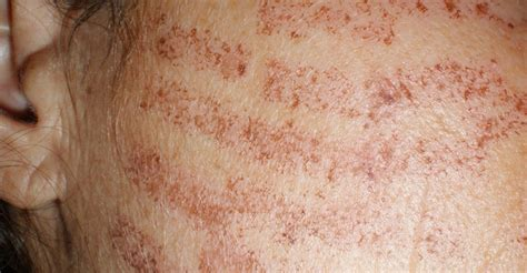 laser hair removal burns things to know treatments colaz
