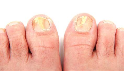 Nail Fungus Photos photos of toenail fungus awesome nail