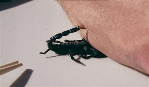 scorpion sting scorpion sting