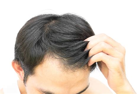 male hair loss pattern due to stress a guide to hair loss in men