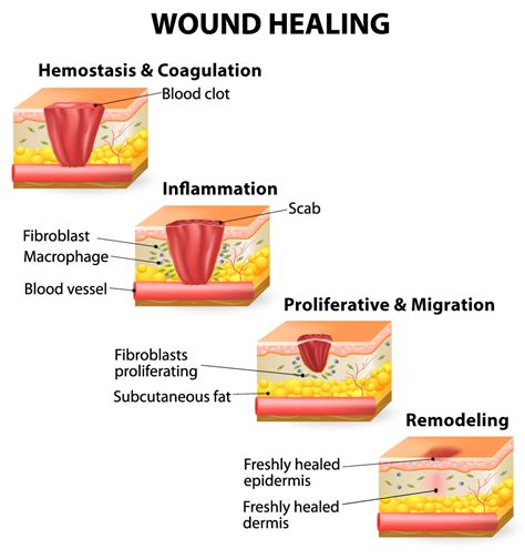 healing your attachment wounds how to create and lasting intimate relationships books sclerosis research surveyspeak is wound healing