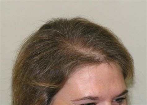 womans hair thinning on sides female hair loss success photos
