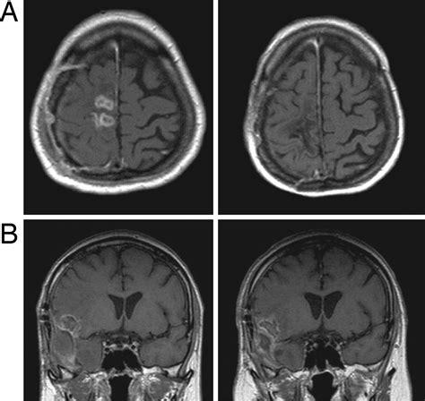 tumore al cervello e alimentazione ci elettrici contro tumori al cervello al via gli studi