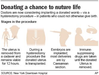 New Wombs For Transplant Anybody by Hospital Plans To Offer Uterus Transplant Health