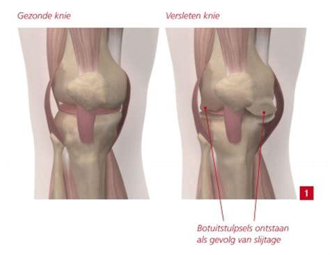 Knie Drat 1 14 kunstknie en knieprothese knieslijtage bij kniepijn