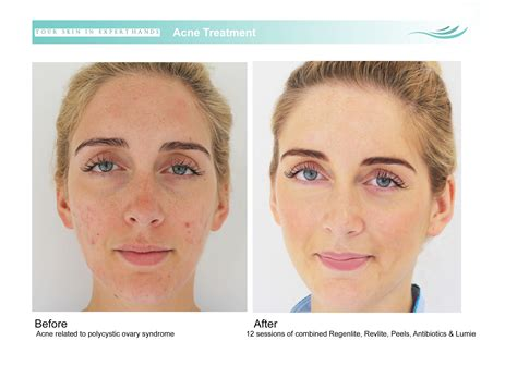 acne the angel laser clinic london