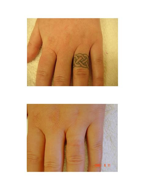 tattoo removal on finger making your own tattoo design small tattoos quotes
