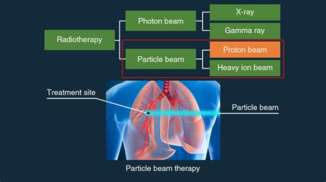 Hitachi Proton Therapy by Preserving Quality Of With Less Invasive Particle