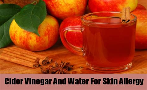 Detox Water For Allergies by How To Cure Skin Allergy Through Home Remedies Common