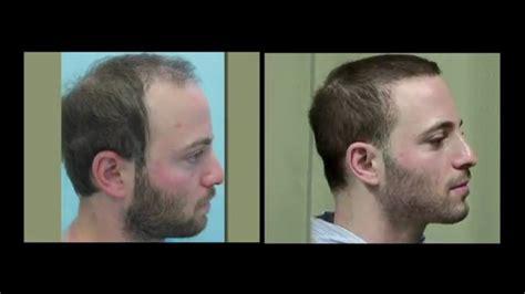 hair transplants in tj reviews fue hair transplants with body hair transplants hybrid