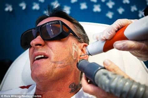 pain free tattoo removal cream could fade away ink