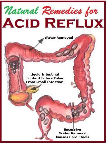 Can Detoxing Cause Refulx by 1000 Images About Acid Reflux Help On