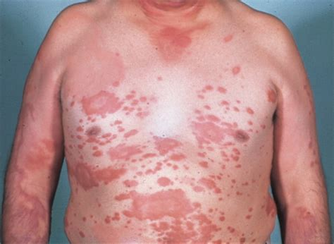 leprosy skin lesions image gallery leprosy lesions