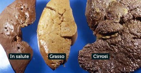 alimentazione per fegato grasso prevenire il fegato grasso mai saltare pasti e no ad