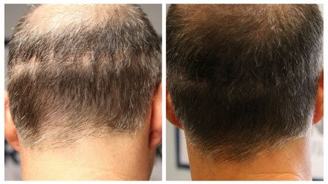 hair style for men haur transplant scar scalp micropigmentation to cover scars by hairline ink