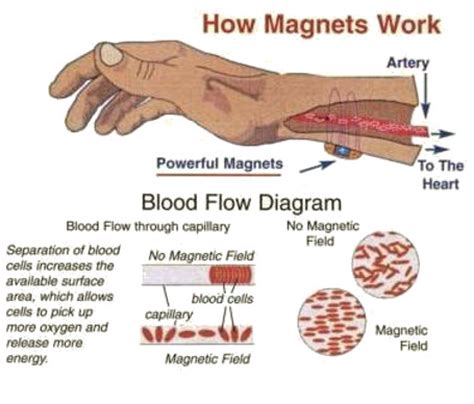 Why Do Thwy Make Recreation Thearapy Part Of Detox by Frequently Asked Questions About Magnetite Jewelry Products