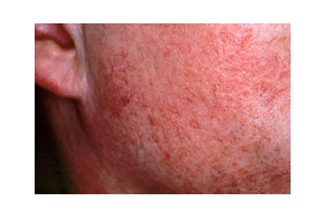 Rash On Forehead After Shower by What S That Rash How To Id Common Rash Symptoms Reader S Digest