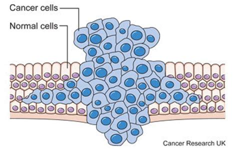 cancer diagram 301 moved permanently