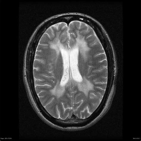 tigroid pattern white matter 136 best images about radio imaging neuro on pinterest