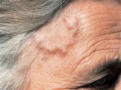 large bump on hairline near right temple general health why do veins pop up on the side of the forehead is this